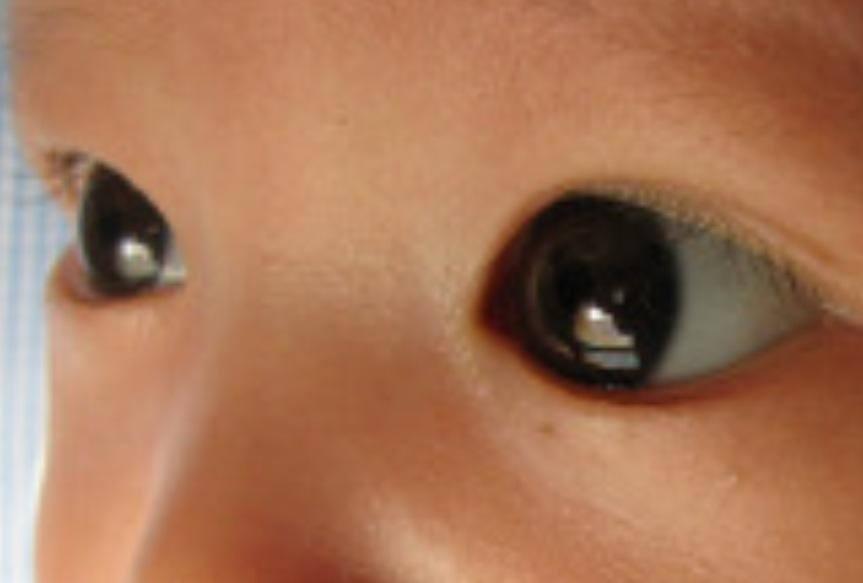 赤ちやんの白目が青いのはなぜですか?