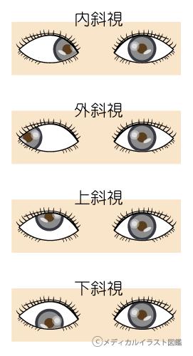 斜視の分類